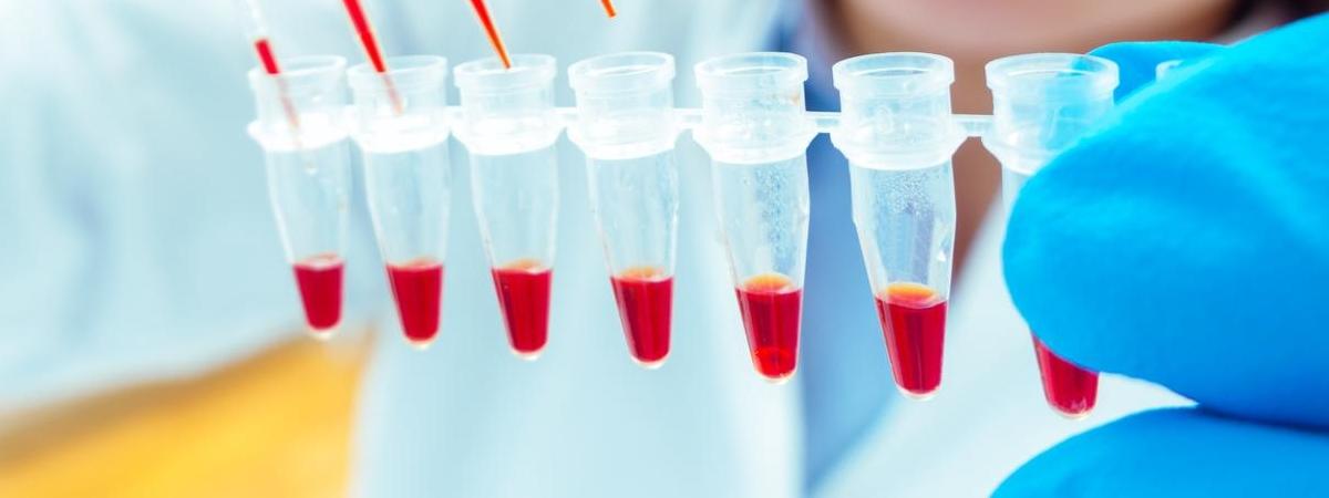 У Польщі зафіксували першу смерть від коронавірусу